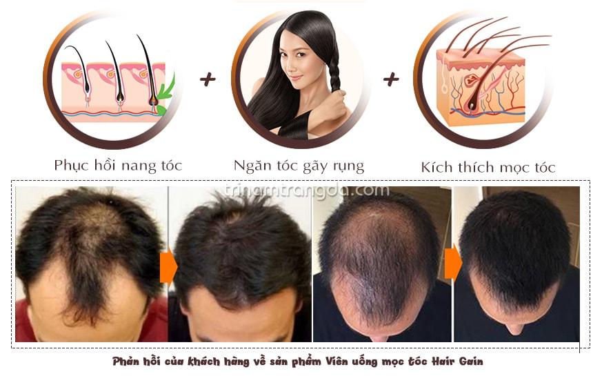 Hiệu quả trước và sau khi uống thuốc trị rụng tóc