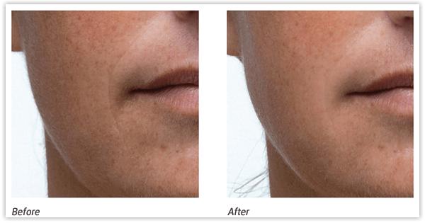 Trước và sau khi dùng Bộ điều trị lão hóa da nâng cơ MedPeel 3