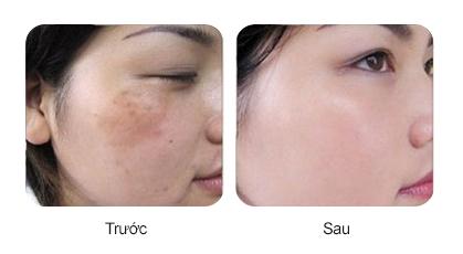 Trước và sau khi sử dụng Bộ tái tạo da sinh học Lumirance Vitamin C Peel Kit
