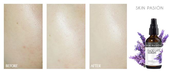 Làn da được cải thiện rõ rệt sau khi sử dụng Tinh chất nâng cơ trẻ hóa da Skin Pasión