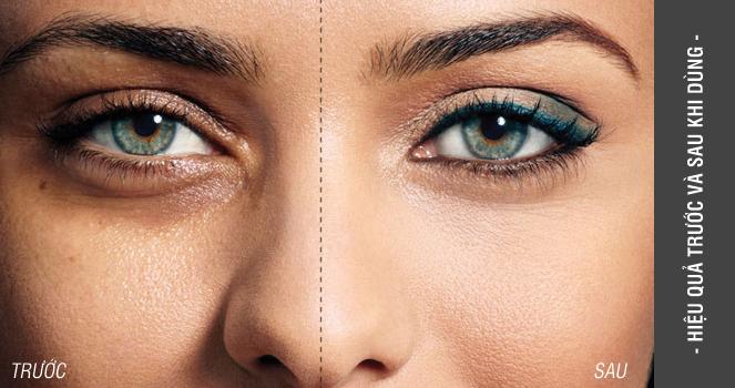 Hiệu quả trước và sau khi dùng tinh chất xóa nhăn trị thâm quầng mắt Skin Pasión Eye Lift Treatment