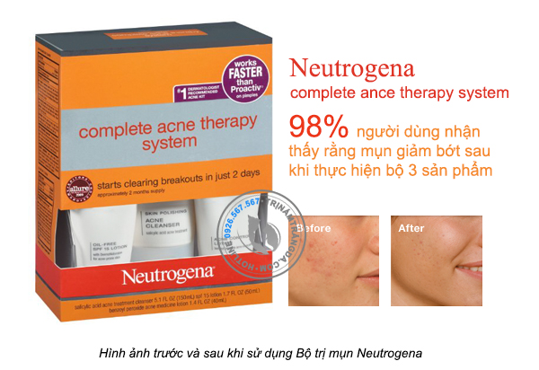 bo-dieu-tri-mun-neutrogena-complete-ance-therapy-system-2