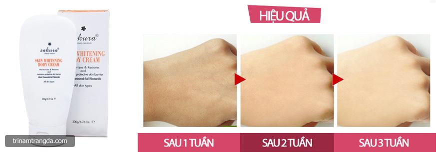 Kem dưỡng trắng da toàn thân Sakura Skin Whitening Body Cream 3