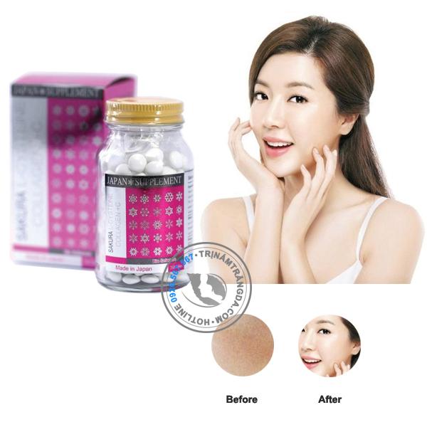 Viên Uống Trị Nám Trắng Da Sakura Lcystine Collagen